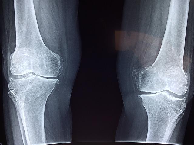 zdjęcie rentgenowskie kolan