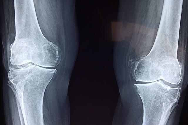 kości-choroby-kości