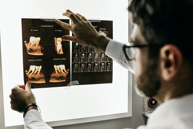 Lekarz robiący prześwietlenie